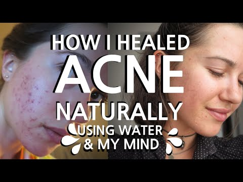 How I healed acne using water & my mind - my natural solutions for improving overall health
