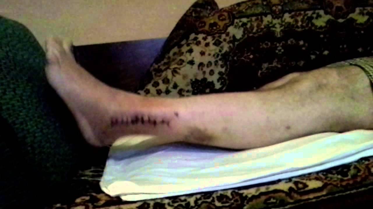 Реабилитация после перелома лодыжки - YouTube