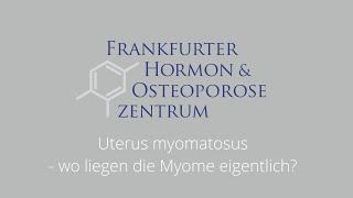 Uterus myomatosus - wo liegen die Myome eigentlich?