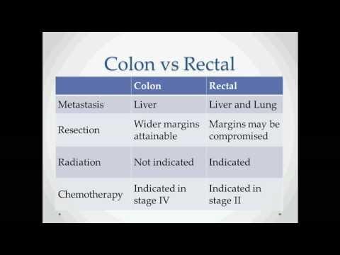 Colon Cancer - USMLE Step 2 Review