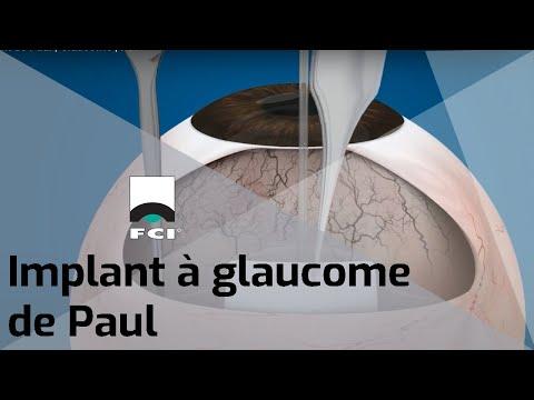 Vignette Implant à glaucome de Paul®