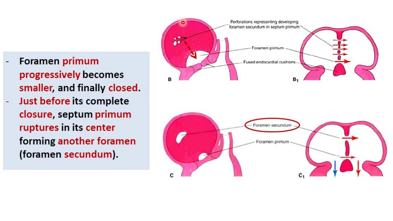 Embryology Of The Heart Atria And Inter Atrial Septum Dr Ahmed
