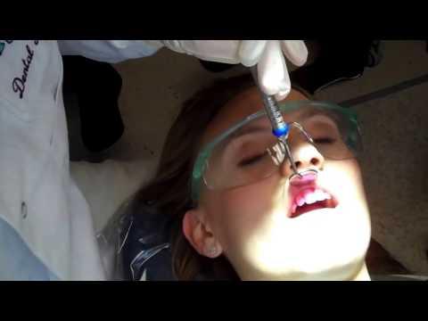 Dental Cleaning Teeth Polish