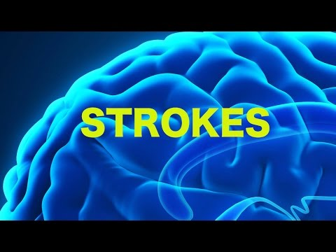 Strokes & The Rule of 4s    USMLE
