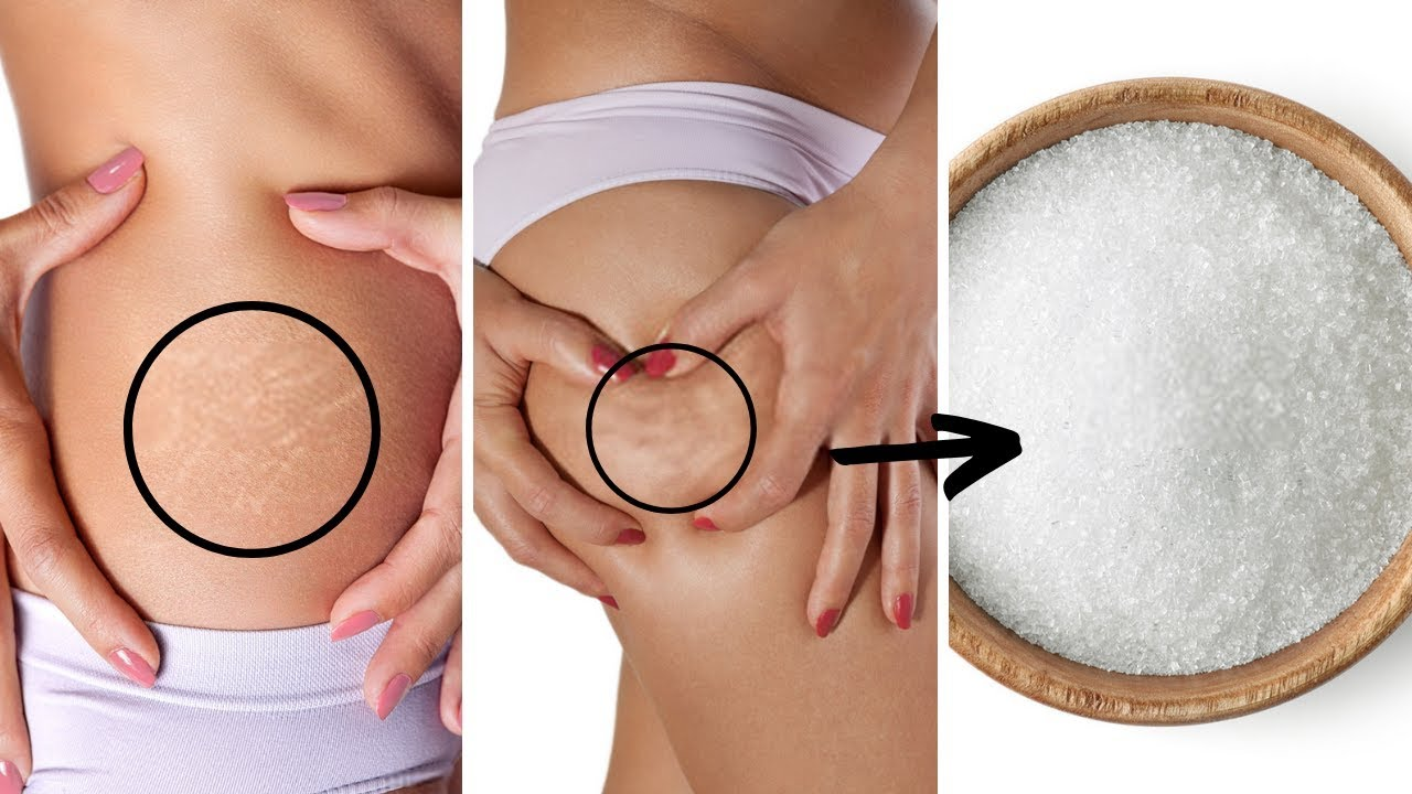 What causes stretch marks on your armpits