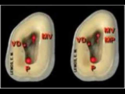 Segundo Molar Superior - YouTube