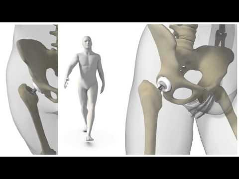SERF NOVAE® DUAL MOBILITY - Femoral Implant