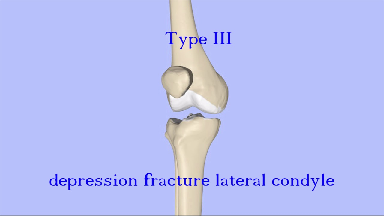 Tibial Plateau Fractures - YouTube