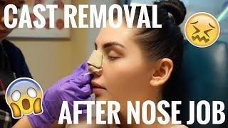 CAST REMOVAL *EMOTIONAL* | NOSE JOB EXPERIENCE | PT 4