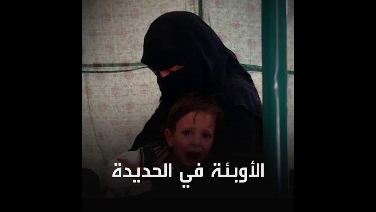 اليمن | الأوبئة تتفشى في الحديدة في ظل تردي الأوضاع المعيشية والصحية