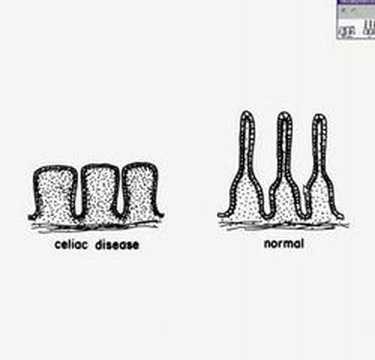 Histopathology Small intestine--Celiac sprue