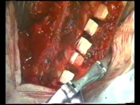 Dr Ramani : 07 : Tension Band Laminoplasty : Part 2