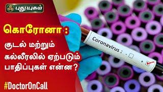 Doctor On Call 09-07-2020 Puthuyugam Tv