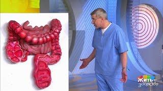 видео Аппендицит