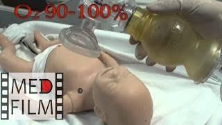 Реанимация новорожденных © Neonatal resuscitation