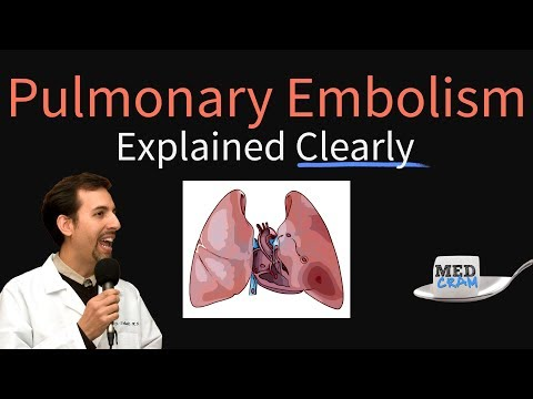 Pulmonary Embolism Explained Clearly - Risk factors Pathophysiology DVT Treatment