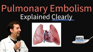 Pulmonary Embolism Explained Clearly - Risk factors, Pathophysiology, DVT, Treatment