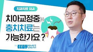 치아 교정 중에충치 치료는가능한가요??[교정 치료와 일…