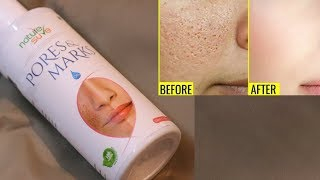 How to Get Rid of Large OPEN PORES | Nature Sure pores and marks oil Review