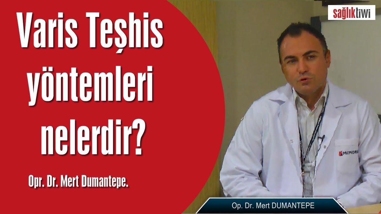 Varis Teşhis yöntemleri nelerdir?   Opr. Dr. Mert Dumantepe SaglikTiwi