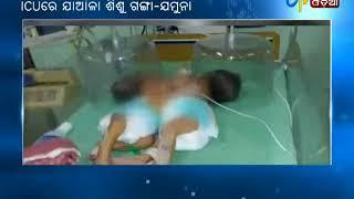 Conjoined Twins Ganga -Jamuna still in ICU - Etv News Odia