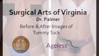 Dr. Palmer Before & After Tummy Tuck Procedures