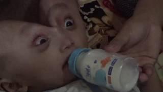BANJARMASINPOST.CO.ID, PARINGIN - Muhammad Faris Al Farisi balita berusia 13 bulan asal Desa Papuyua.