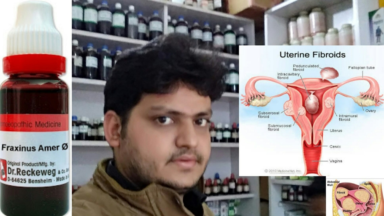 How to remove Uterine fibroids by homeopathic medicine??explain!