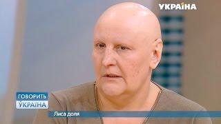 Лысая судьба (полный выпуск) | Говорить Україна