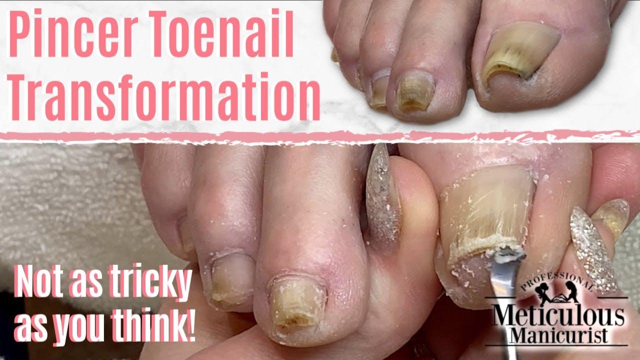 How To Fix Ingrown Toenail Pincer Nails Caused Nail Fungus
