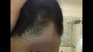 MINOXIDIL WORK ON TEMPLES IN JUST 2 MONTHS!