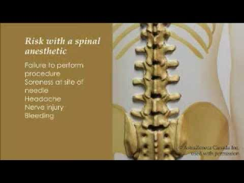 Spinal Anesthesia