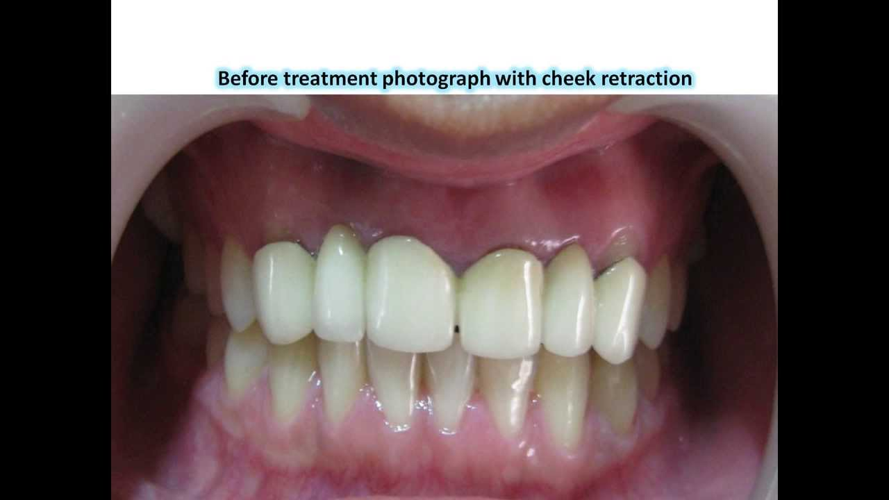 Replacement Of Crown Amp Bridge With Metal Free Zirconia