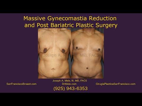 massive-gynecomastia-reduction-post-bariatric-plastic-surgery