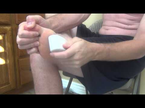 "How to get rid of ""Plantar Wart"" now using Apple Cider Vinegar - Part 2"