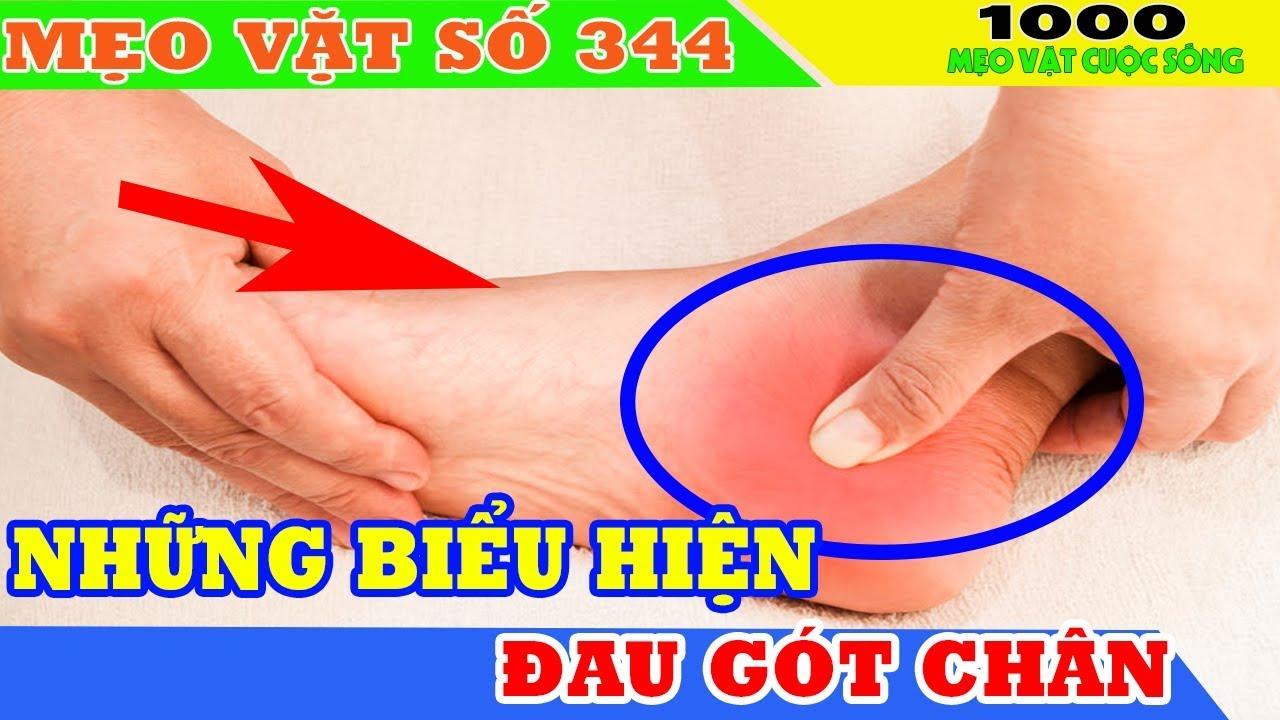 Đau gót chân là bệnh gì? II Cách phòng và chữa trị đau gót chân tại nhà