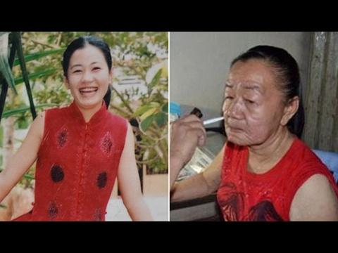 El Misterio de la Mujer de 23 Años que se Volvió Anciana en Pocos Días