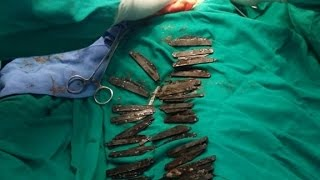 Indian man has 40 knives removed from stomach by : CNN