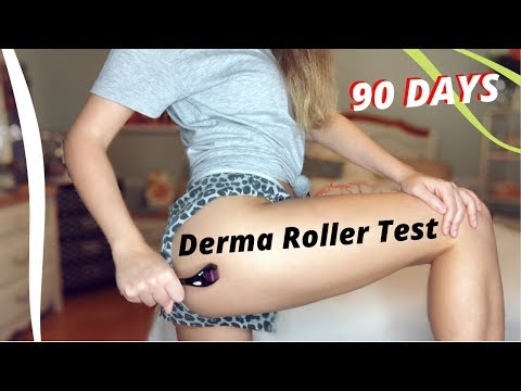 Can A .5mm Derma Roller Get Rid Of CELLULITE & Forehead Wrinkles?