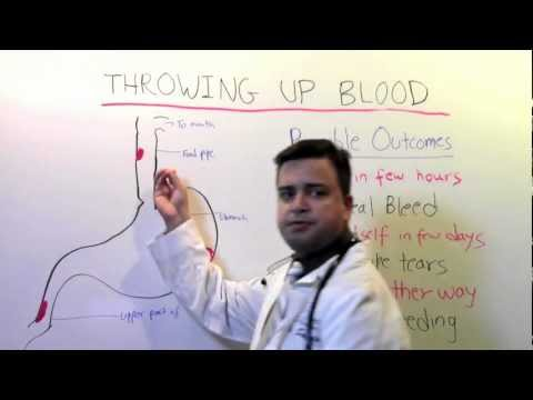 Throwing Up Blood: A Video For Patients