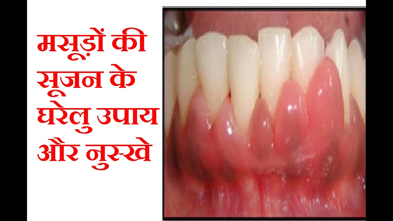 Natural Gum Treatment