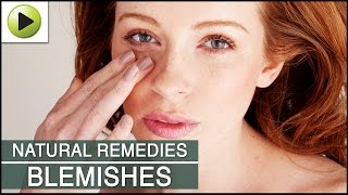 Skin Care - Clearing Skin Blemishes - Natural Ayurvedic Home Remedies