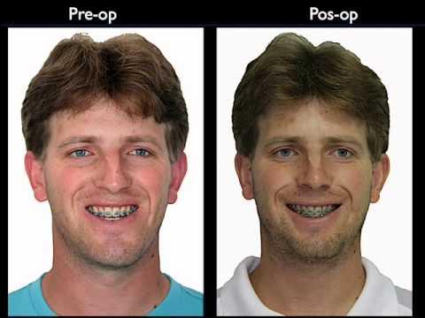 Criolip lise: Antes e Depois, Pre os 96