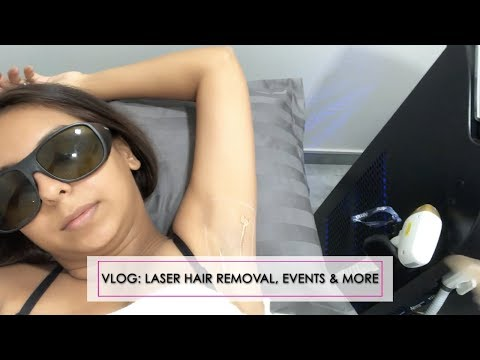 VLOG: Laser Hair Removal, Events, Weddings & More