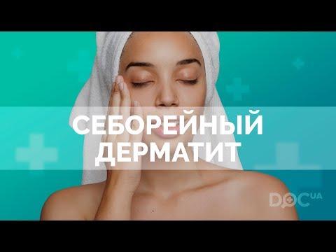 Себорейный дерматит кожи головы