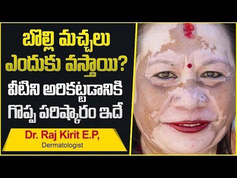 How To Cure Vitiligo | Health Tips In Telugu | Dr. Raj Kirit E.P Full Interview
