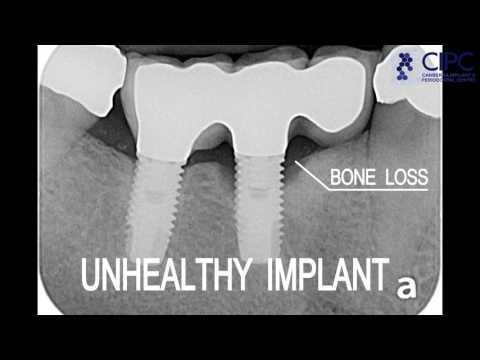 How to Clean Your Dental Implant : CIPC Tutorial