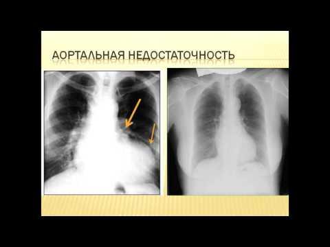Атеросклероз аорты: симптомы, лечение, признаки и диета