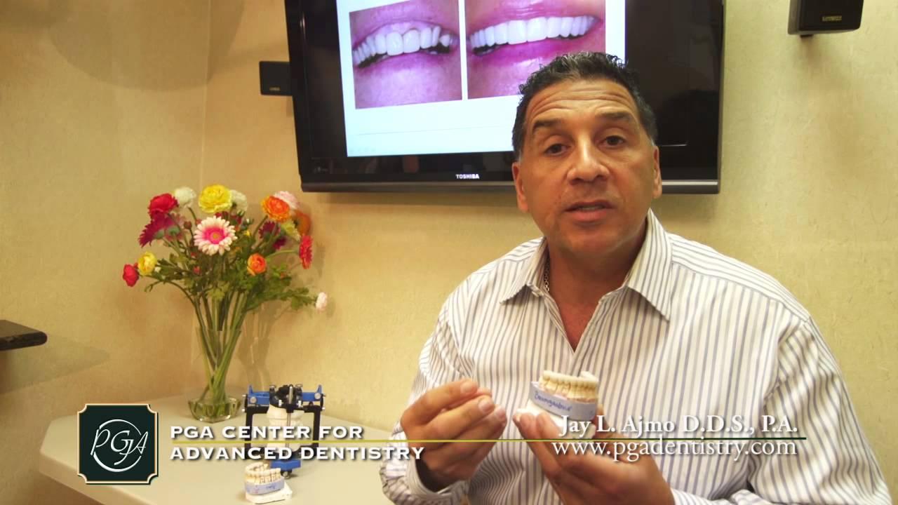 Best Cosmetic Dentist Palm Beach Gardens Florida Youtube