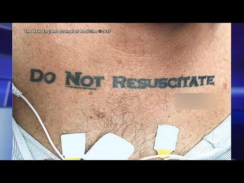How Hospital Reacted to Man's 'Do Not Resuscitate' Tattoo